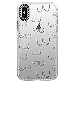 Casetify Boobies iPhone X/XS Case in Boobies